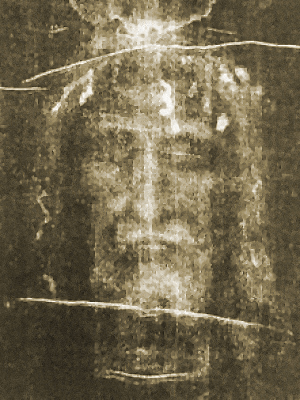 The face on the Turin Shroud